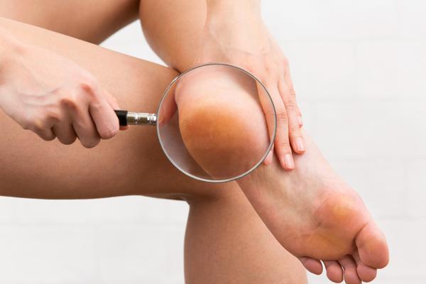 足裏の色はどんな色? 「足裏カラー診断」で、今日の調子を整えよう!