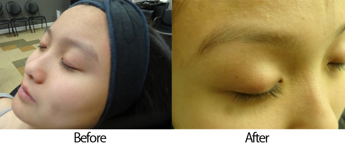 眉毛施術前のぼさぼさ眉と眉毛施術後の整った眉