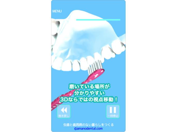 正しい歯磨きをアプリで知る