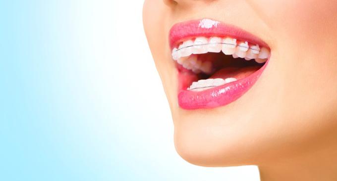 歯列矯正をして笑顔の女性
