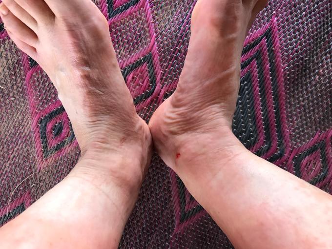 腫れあがった脚