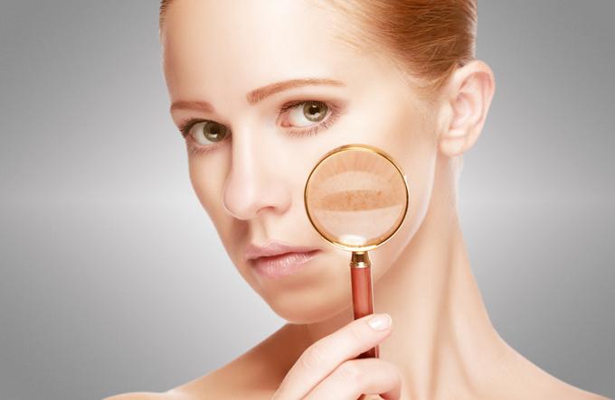 顔のシミを虫眼鏡で拡大している女性の画像
