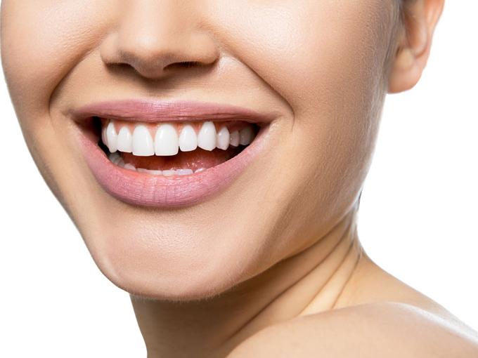 口を開けて笑っている女性の画像