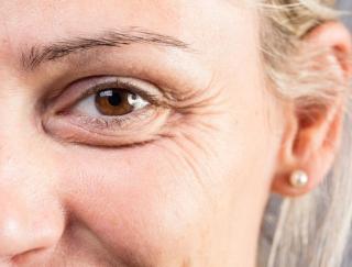 シワができやすいのは「色黒」と「色白」のどっち? 肌の色と紫外線が相関する理由とは