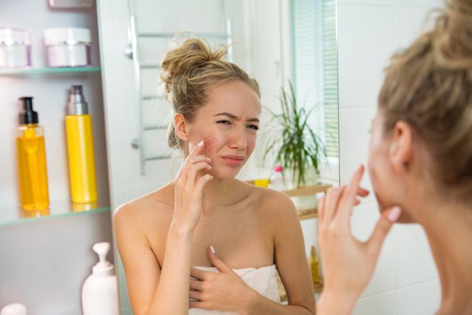 鏡の前で肌あれを気にしている女性