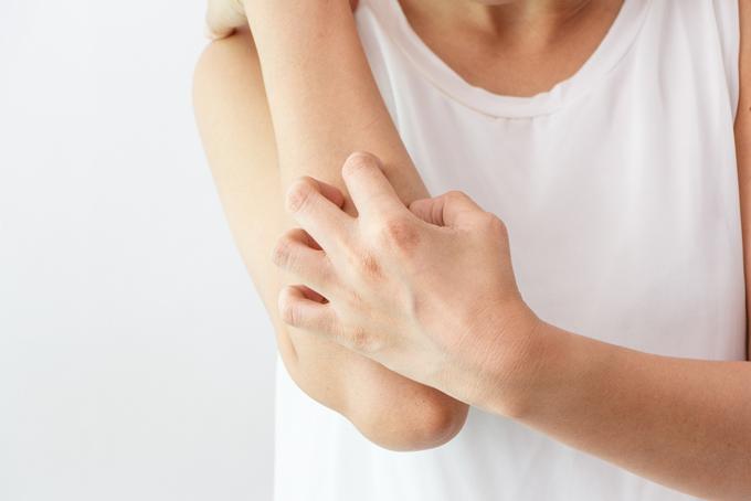 腕を掻いている女性の画像