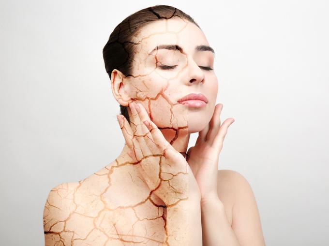 お肌が乾燥している女性のイメージ