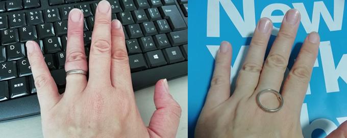 左:カッサ前は指輪が抜けなかった 右:カッサ後、指輪が抜けた!