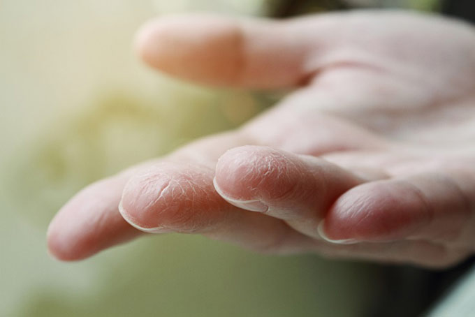 荒れた指先の手