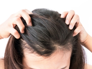 前頭葉の髪の毛をかき分けている女性の頭画像