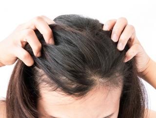 美髪アドバイザーに質問! 急に白髪が増えました!? どうしたらいいの?