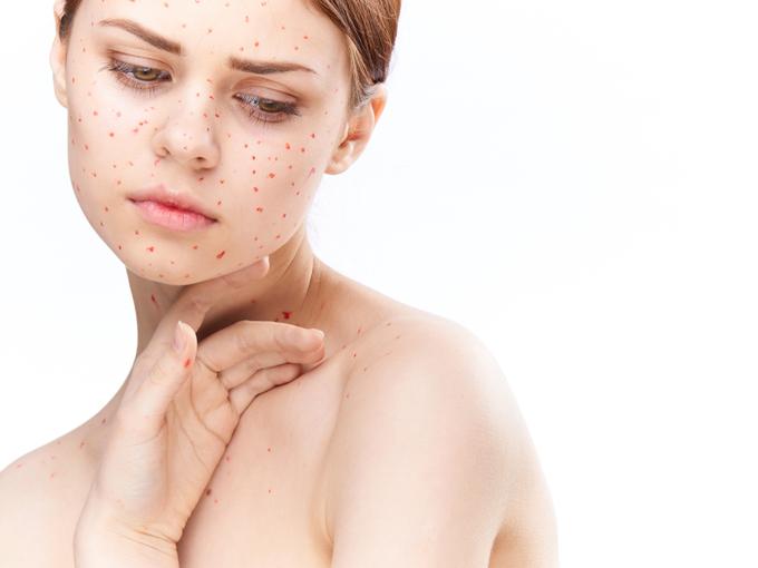 風疹にかかった女性