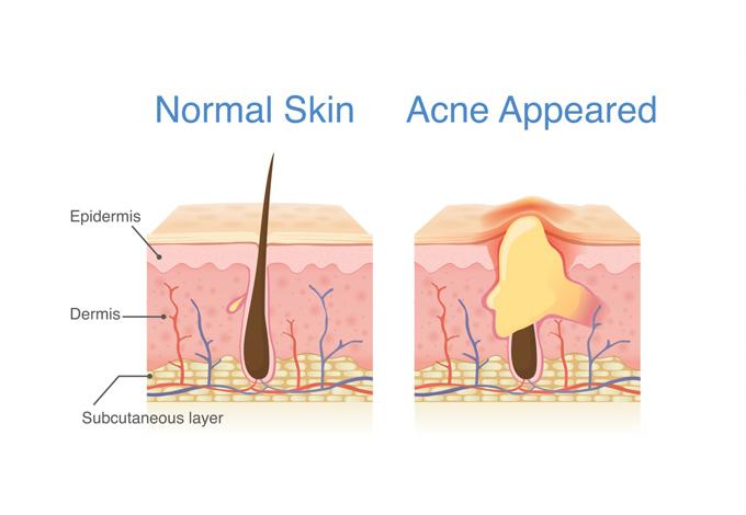 ニキビトノーマル肌の比較
