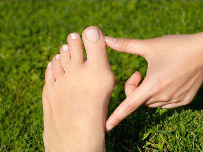 外反母趾の方の足