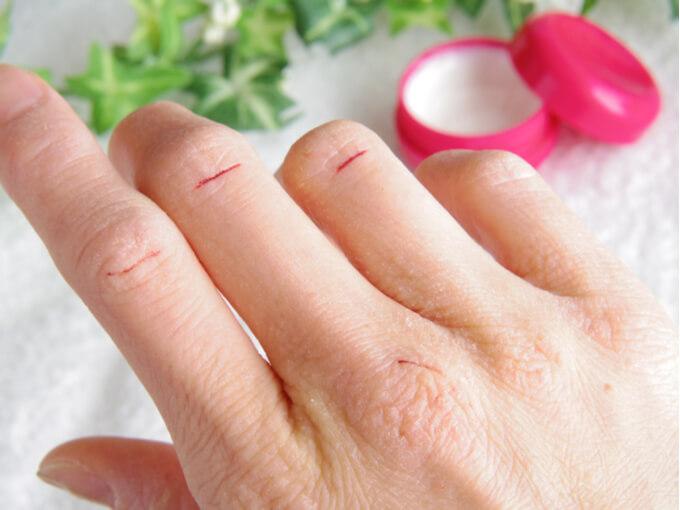 あかぎれしてしまった女性の手