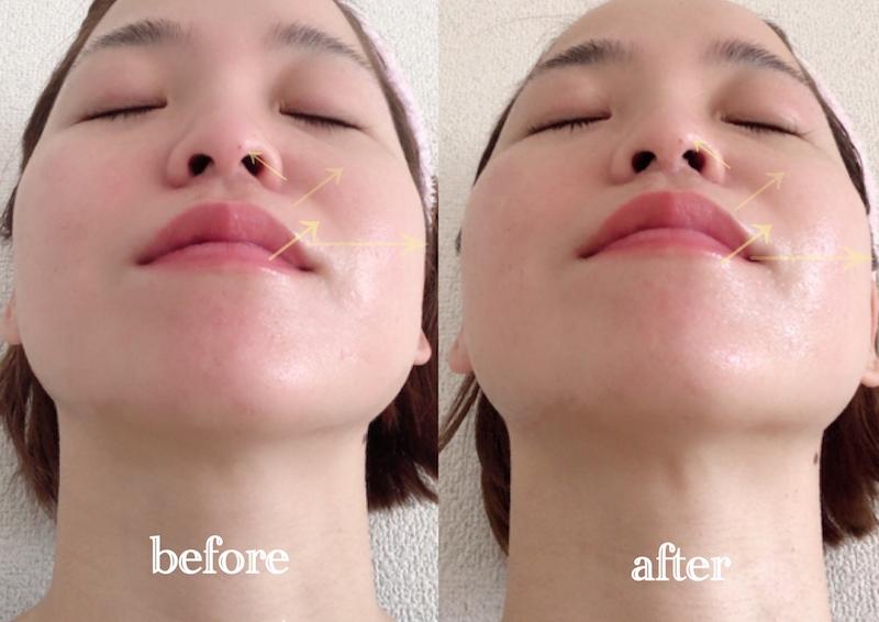 鼻の広がりのビフォアアフター