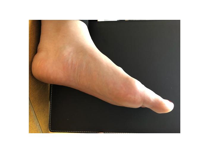 偏平足の足の例