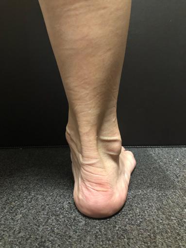 アキレス腱が出ている足