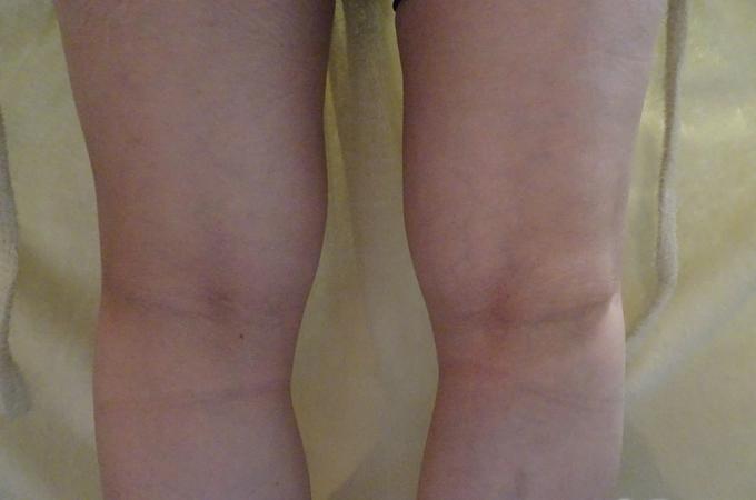 ひざ裏がはれている実例