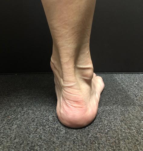 アキレス腱がしっかり出ている実例