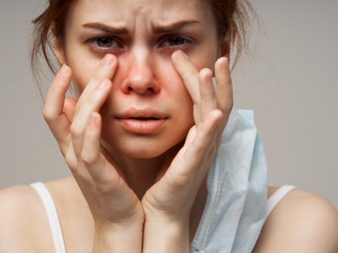 皮膚のアレルギーに悩む女性