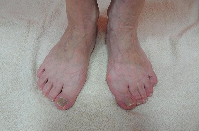 血管の目だつ足