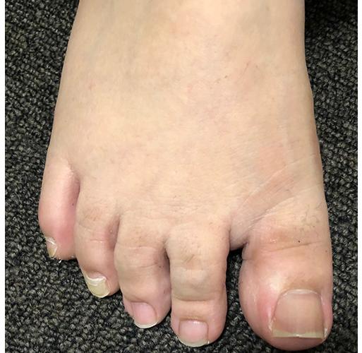 水かきの短い足