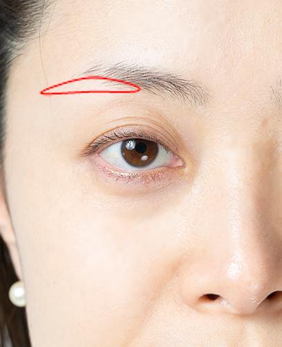 女性の顔の右上部分の画像