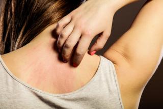 背中を掻く女性の画像