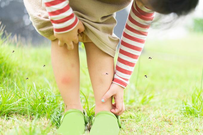 蚊に刺される子どもの画像