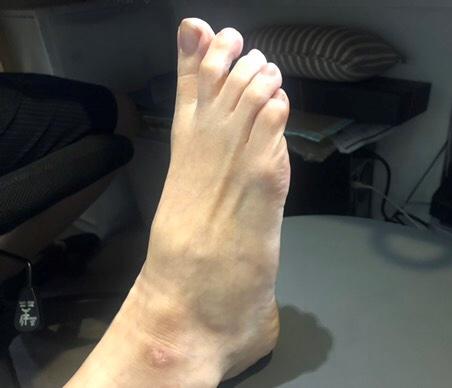 足指に力がはいっていない足