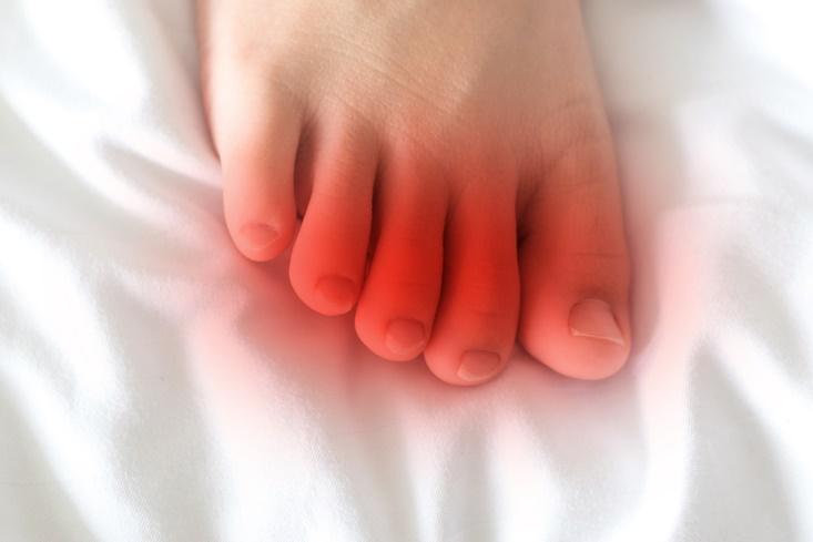足先が赤い、病気のイメージ