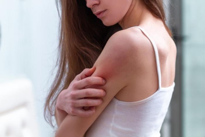 蚊にさされてかいている女性