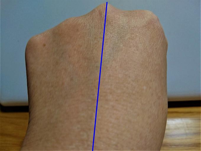 手の甲を比較した写真