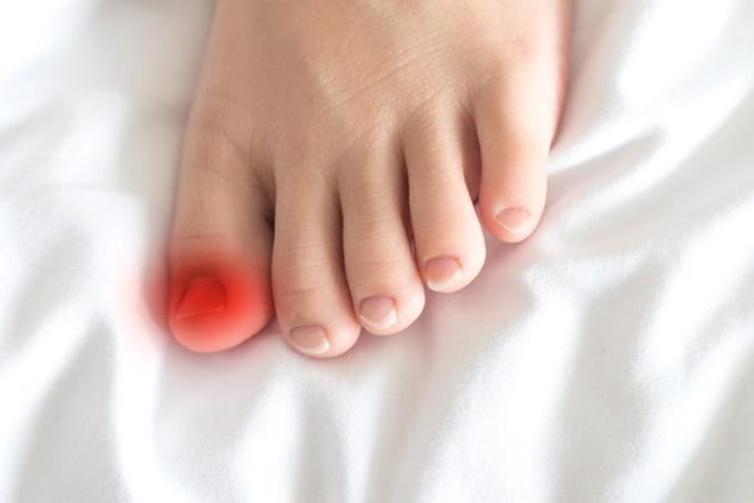 爪のトラブルを示す赤いマーク