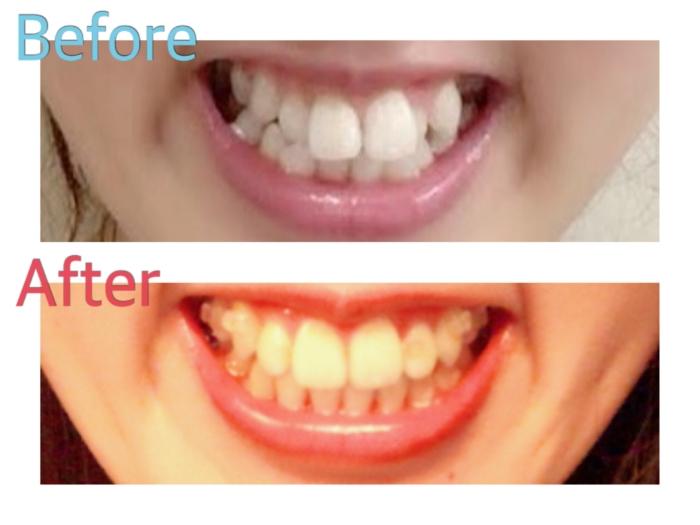 歯列矯正ビフォーアフター