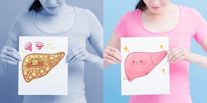 脂肪肝の肝臓と 正常な肝臓