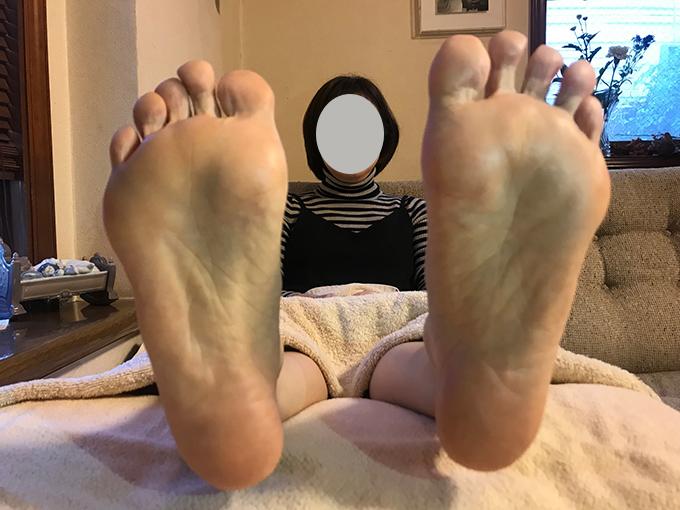 ビフォアの足裏