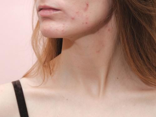 肌荒れしてしまった女性のイメージ画像