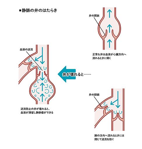 イラスト 静脈の弁のはたらき 入る