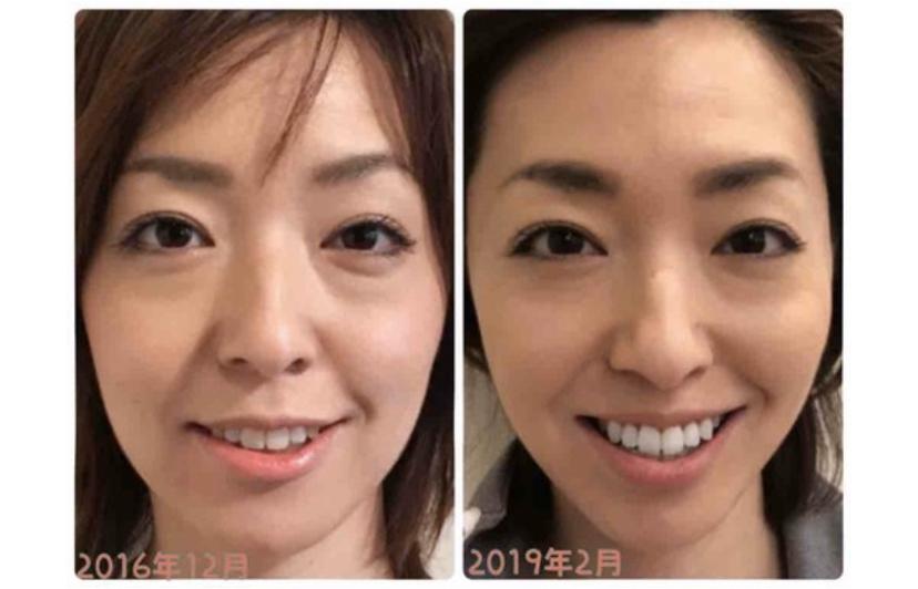延村さんの顔ヨガBEFORE&AFTER