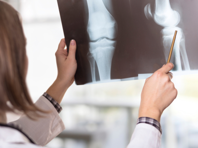 脚の骨のレントゲン画像を見る女性医師