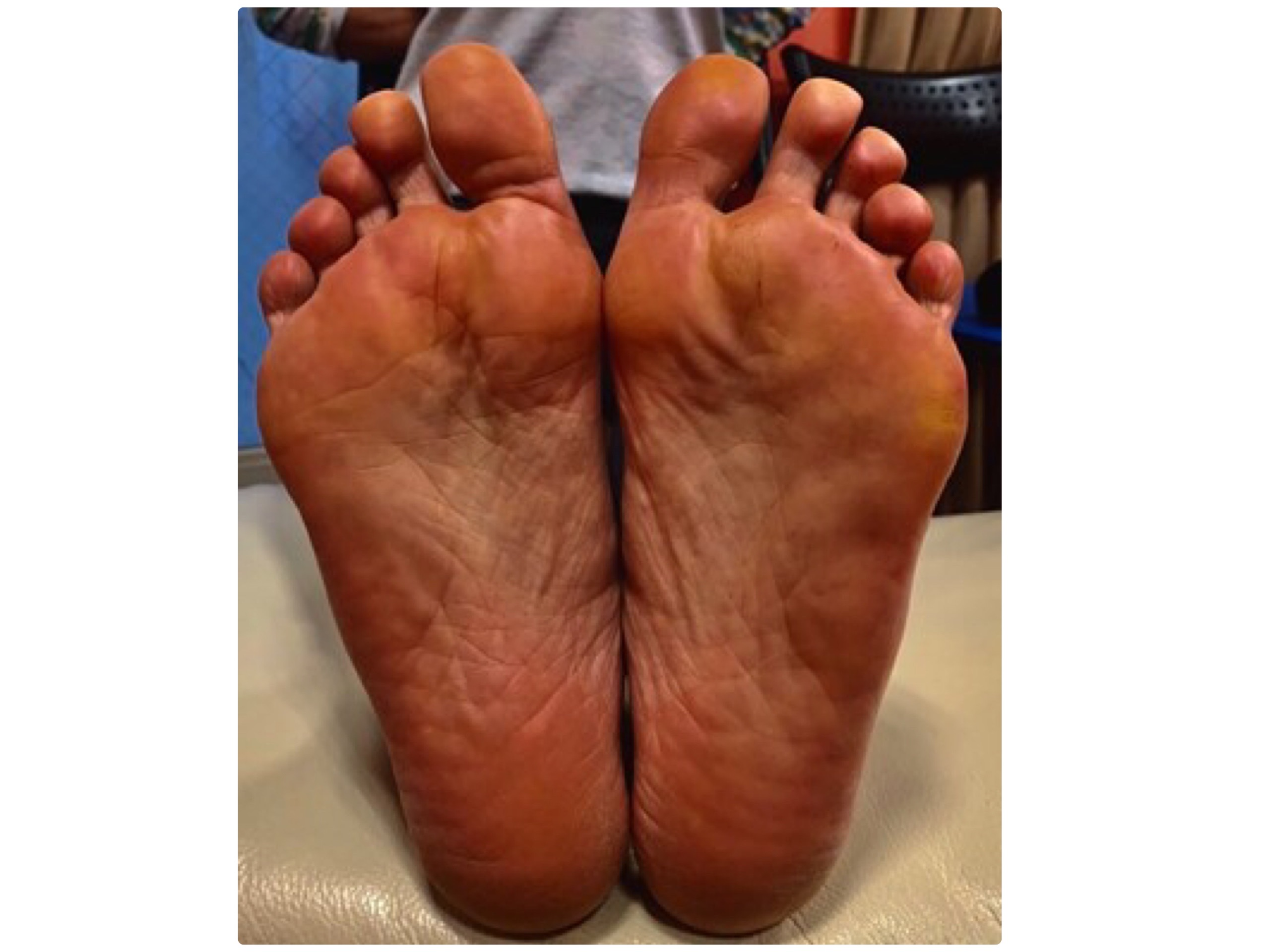 足裏が赤紫色の実例