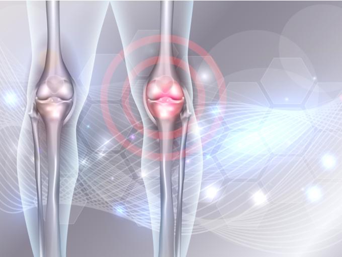 ひざの骨のイメージ画像
