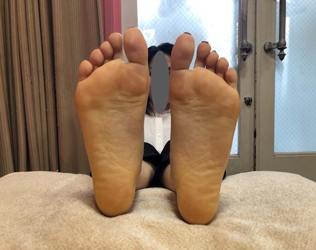 うす黄色をした足裏の例
