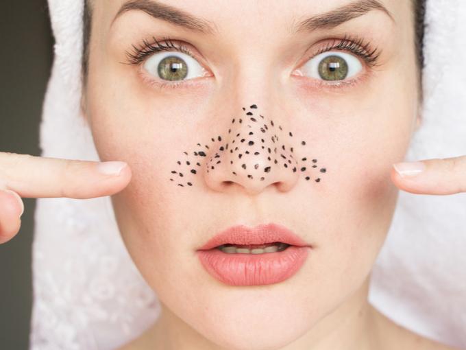 鼻の頭の毛穴の汚れ示す女性