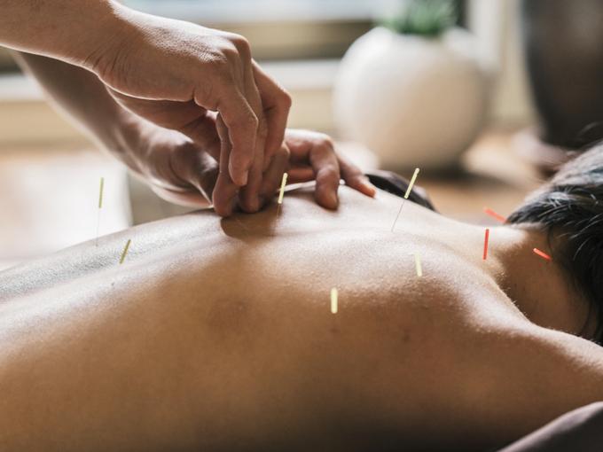 鍼を受ける女性