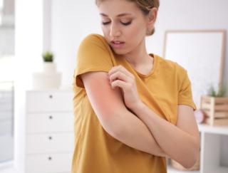 幼少期のアレルギーの悩みはお母さんと同じ? その理由は…? デンマークの研究でわかったこと