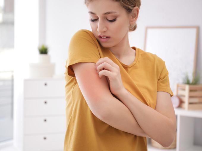 アレルギーで肌が赤くなった女性
