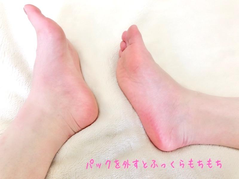 フットパックを外したモチモチの足